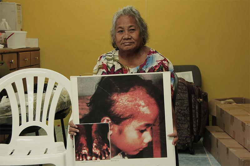 A Marshallese woman with a photo of radiation burns